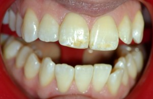 Before Wicked White Whitening